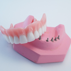 mini-implant-dentures-cost
